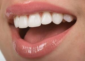 Tooth Bonding Main Image
