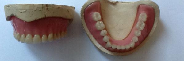 Complete Upper and Lower Dentures Made at Atlanta Prosthodontics in Buckhead