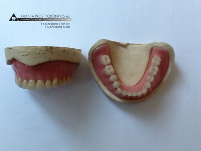 Complete Upper and Lower Dentures Made at Atlanta Prosthodontics in Buckhead