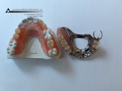 Flexible Partial Dentures and  Cast Metal Partial Dentures Made at Atlanta in Buckhead