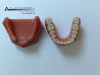 Mini Dental Implants and Dentures at Atlanta Prosthodontics in Buckhead