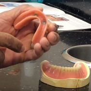 Immediate, Regular, and Implant Dentures